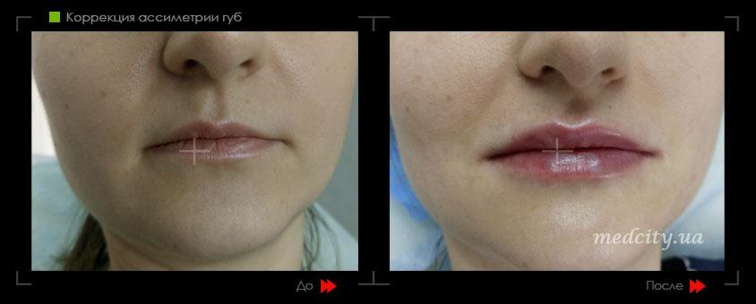 Как исправить ассиметрию губ