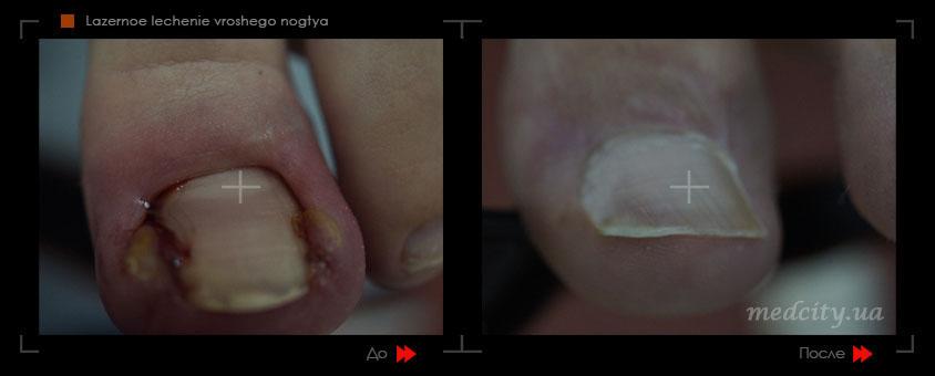 Эффективное лечение вросшего ногтя