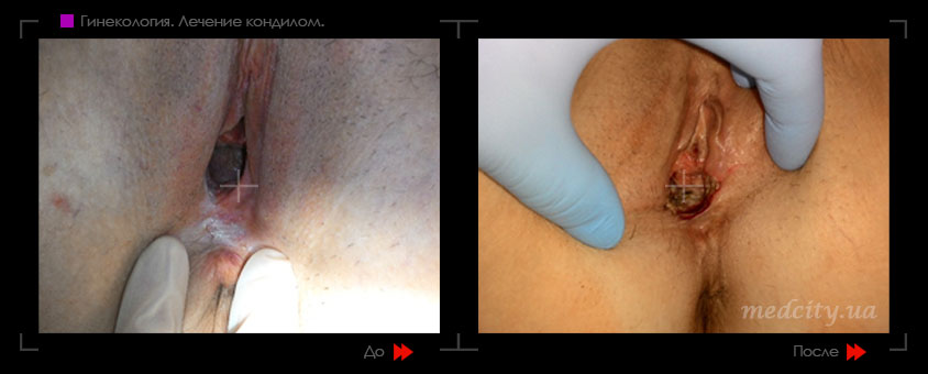 Лазерная эпиляция вагины видео sr-03a spa массажер для лица и тела водостойкий