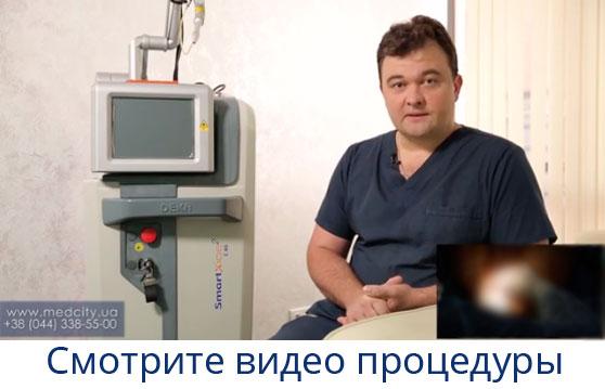 Удаление геморроя лазером цена и отзывы об операции