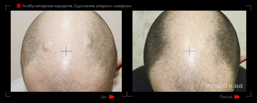Удаление шишки на голове (атеромы)